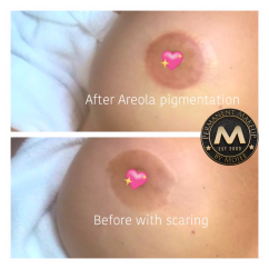 Areola re-pigmentation